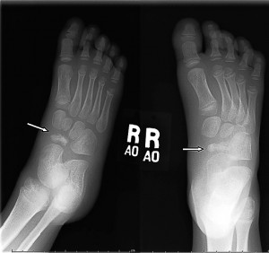 navicular-bone-child-xray