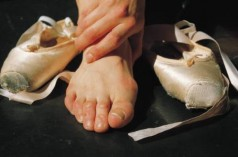 Post image for How Should Bunions Be Treated?